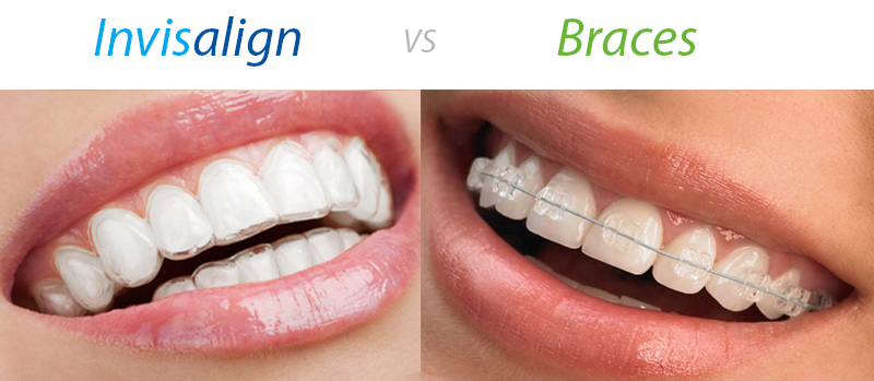 Invisalign-vs-clear-ceramic-braces